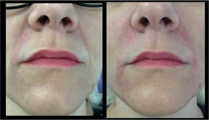 Dermal Fillers Middlesbrough